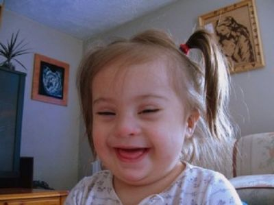Prenatal Vitamins For Babies With Down Syndrome Taking prenatal vitamins is also