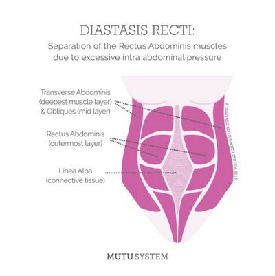 Treatments For Diastaseis Recti - Helpful Tips Symptoms may include abdominal